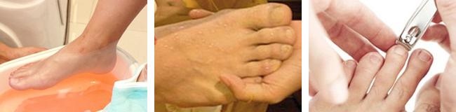 Sunde fødder med den bedste fodbehandling. Pedicure giver nyt liv til fødderne